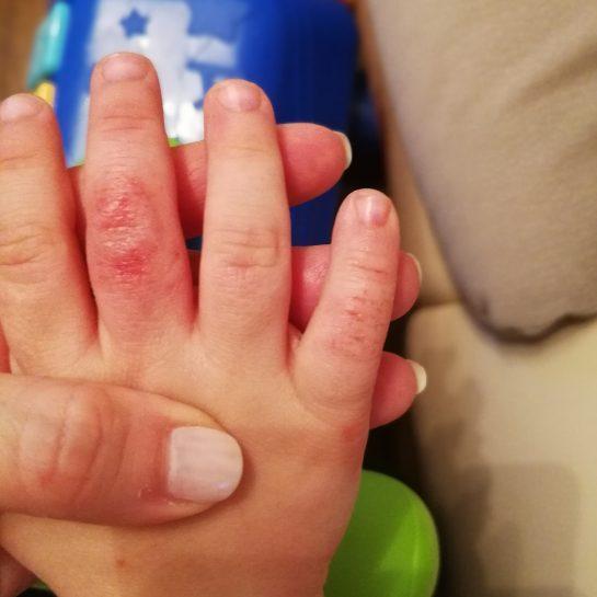 SkinFairyTale, naravna krema, atopijski dermatitis, nega atopijske kože