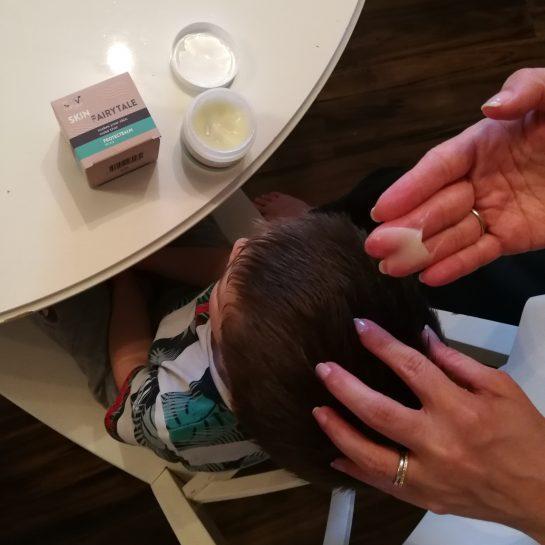 Negovanje lasišča pri atopijskem dermatitisu