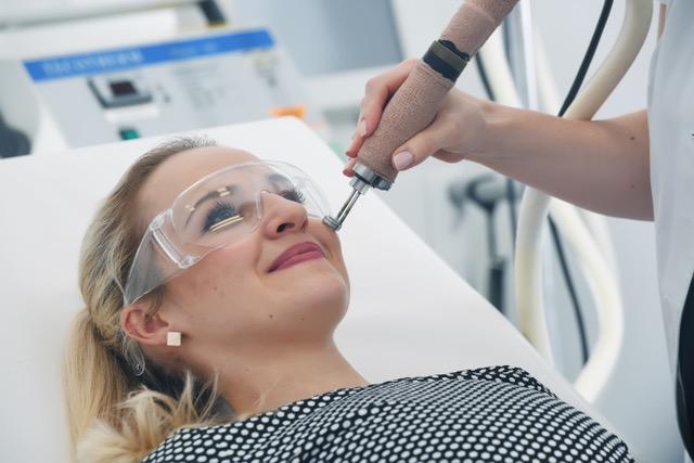 Lasersko odstranjevanje žilic na obrazu